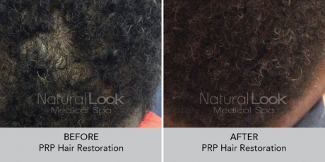 PRPHairRestoration NaturalLookBeforeAfterphotos
