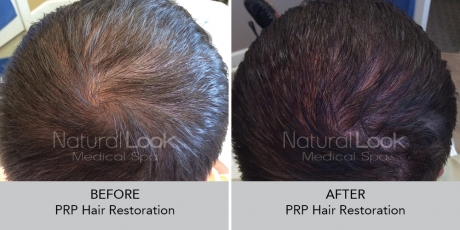 PRPHairRestoration NaturalLookBeforeAfterphotos2