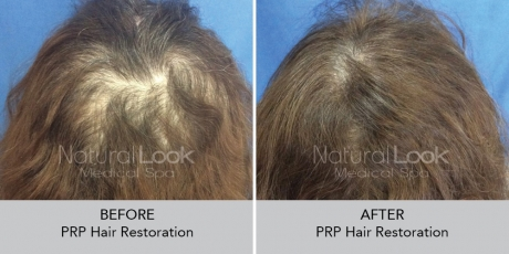 PRPHairRestoration NaturalLookBeforeAfterphotos3