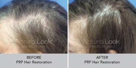 PRPHairRestoration NaturalLookBeforeAfterphotos4
