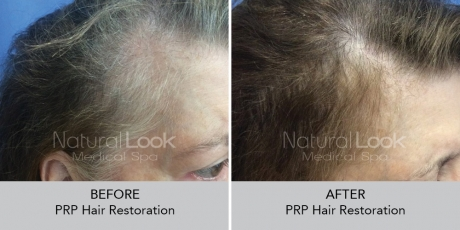 PRPHairRestoration NaturalLookBeforeAfterphotos5
