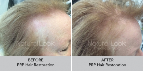 PRPHairRestoration NaturalLookBeforeAfterphotos6