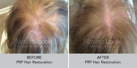 PRPHairRestoration NaturalLookBeforeAfterphotos7