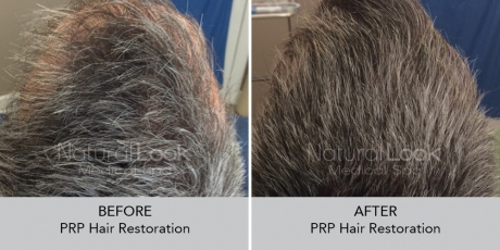 PRPHairRestoration NaturalLookBeforeAfterphotos8