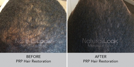 PRPHairRestoration NaturalLookBeforeAfterphotos9