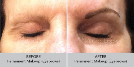 Permanent Makeup NaturalLookBeforeAfterphotos