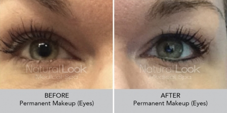 Permanent Makeup NaturalLookBeforeAfterphotos3