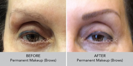Permanent Makeup NaturalLookBeforeAfterphotos4