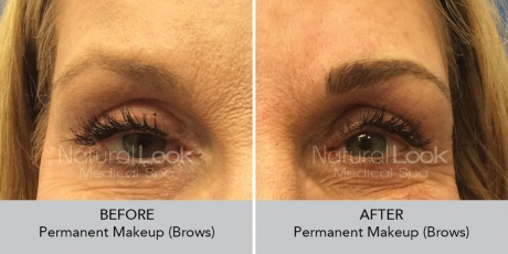Permanent Makeup NaturalLookBeforeAfterphotos5 1