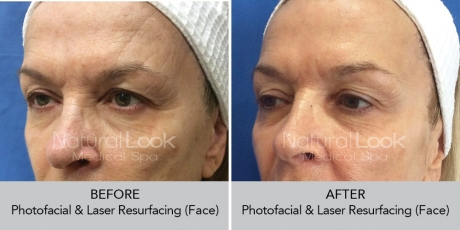 Photofacial LaserResurfacing NaturalLookBeforeAfterphotos2