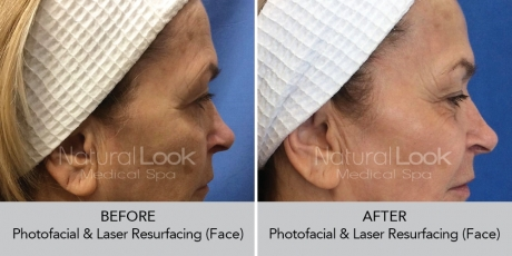 Photofacial LaserResurfacing NaturalLookBeforeAfterphotos3