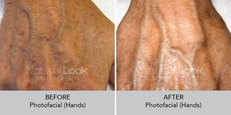 Photofacial NaturalLookBeforeAfterphotos
