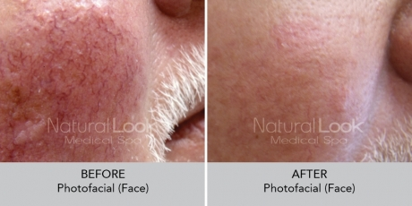 Photofacial NaturalLookBeforeAfterphotos2