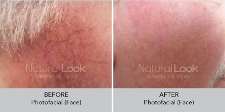 Photofacial NaturalLookBeforeAfterphotos3
