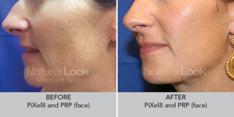 PiXel8 and PRP Treatment, skin treatment