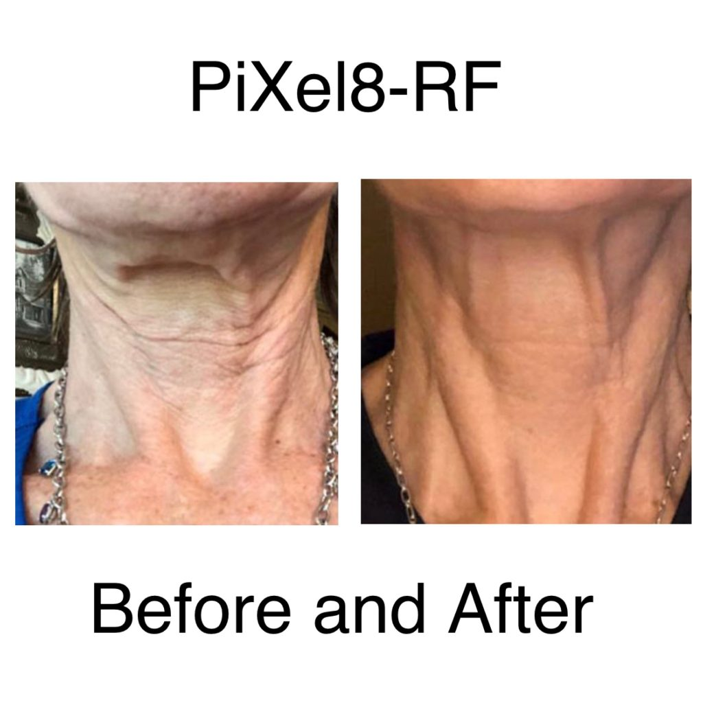 Pixel8 RF Neck before and after