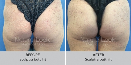 Sculptra NaturalLookBeforeAfterphotos