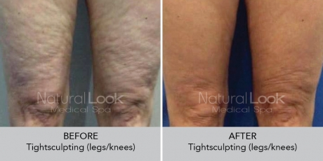 Tightsculpting NaturalLookBeforeAfterphotos 1